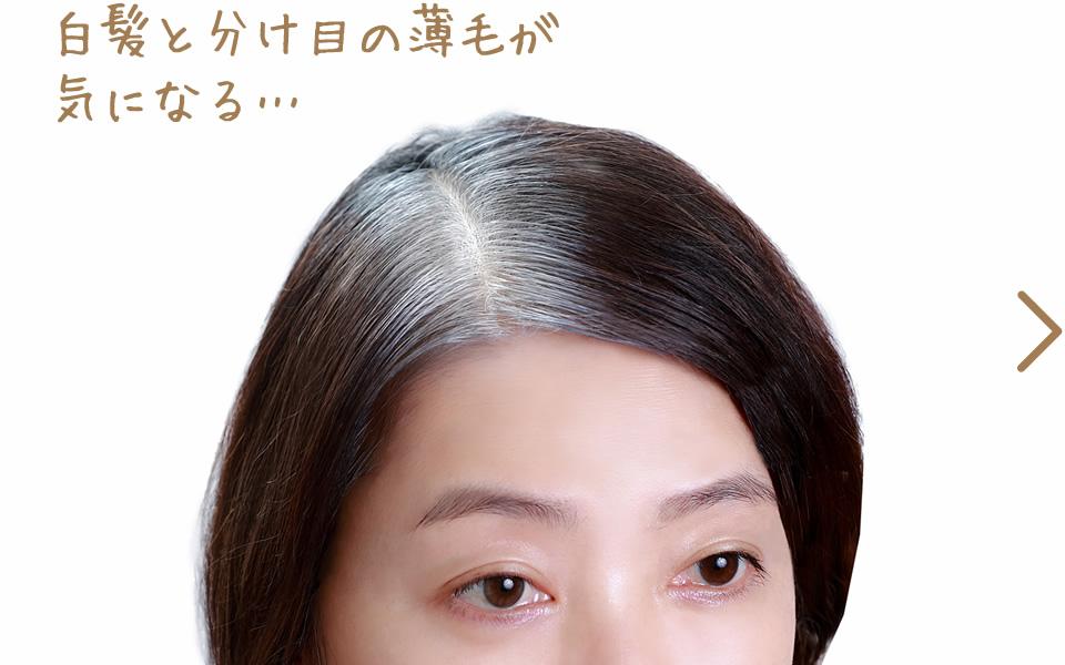 白髪と分け目の薄毛が気になる…